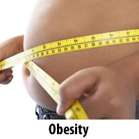 obesity treatment