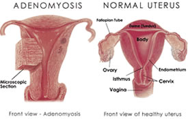 image of uterus