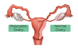 picture of ovarian cyst