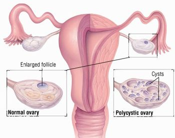 pcos ovary images