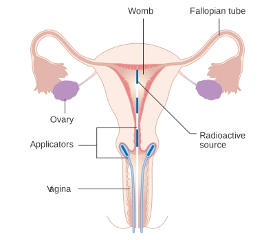 vaginal discharge images